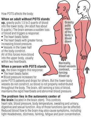 The Anatomy and Physiology of Dysautonomia and POTS